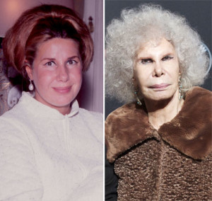 Duchess of Alba before and after photo