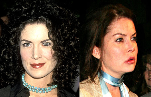 Lara Flynn Boyle before and after photos