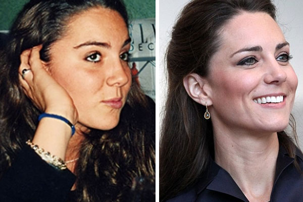 kate middleton before and after photos