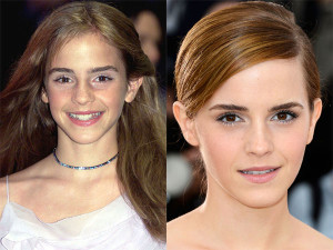 Emma Watson Plastic surgery Before and After Showing Nose Job