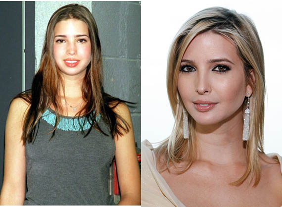 Ivanka Trump Plastic Surgery Before and After Photo