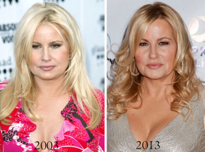 Jennifer coolidge before and after
