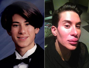 Justin Jedlica Surgeries: Man Who Had 140 Plastic Surgery Procedures in 15 years