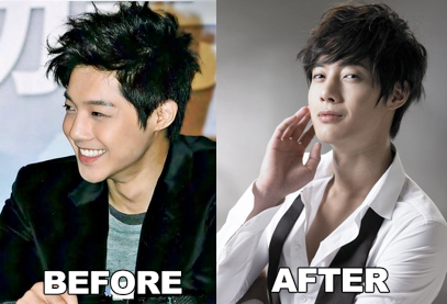 Kim Hyun Joong Plastic Surgery Before And After Nose Job Pic
