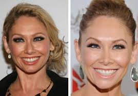 Kym Johnson Plastic Surgery Before and After Nose Job, Botox and Facelift
