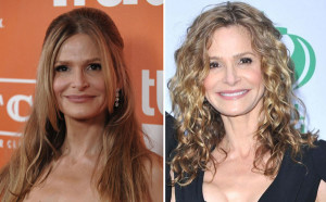 Kyra Sedgwick Plastic Surgery Before and After Pic Showing Facelift, Botox