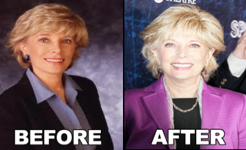 leslie stahl before and after photo