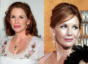 melissa gilbert before and after
