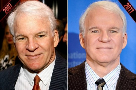steve martin before and after