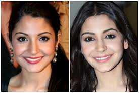 ansuhka sharma before and after