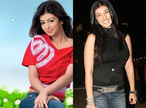 ayesha takia plastic surgery before and after