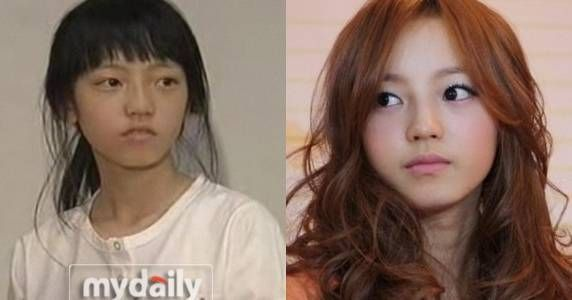 goo hara before and after photo