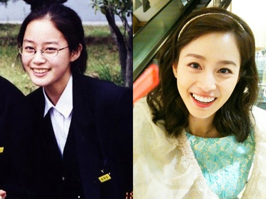 Kim Tae-hee before and after photo