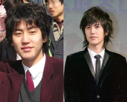 kyunhyun before and after photo