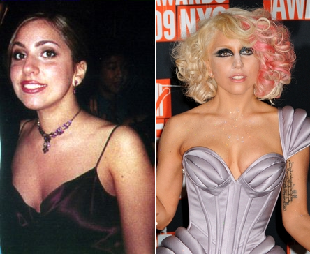 lady gaga before and after plastic surgery