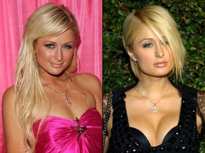 paris hilton before and after photo