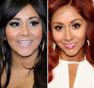 Snooki Plastic Surgery Before and After Photo Showing Breast Augmentation