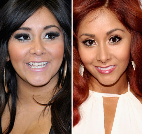 Snooki before and after