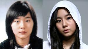 Uee Plastic Surgery Before and After Pic Showing Eyelid Surgery