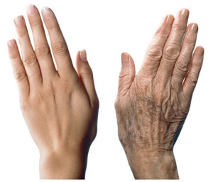 Anti-ageing for Hands and Chest plastic surgery trend