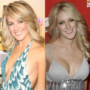 Heidi montag Smith best boob job, Heidi montag best breast implants