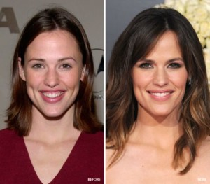 Jennifer garner cosmetic dental surgery for smile makeover