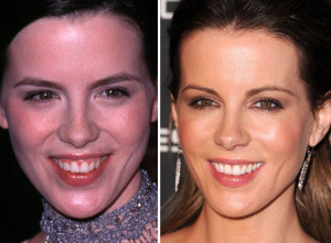 Kate Beckinsale cosmetic dental surgery for smile makeover