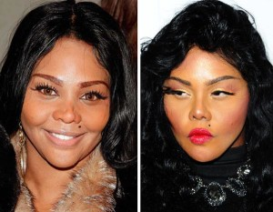 List of Celebrities Whose Nose Job Gone Wrong