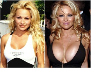 worst Celebrity Breast Implants and boob jobs