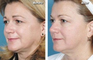 ReFirme plastic surgery procedure