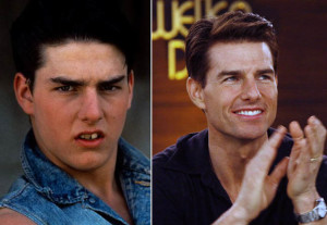 Tom cruise cosmetic dental surgery for smile makeover