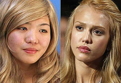 Asian Celebrities Plastic Surgery 39