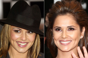 Cheryl cole cosmetic dental surgery before and after