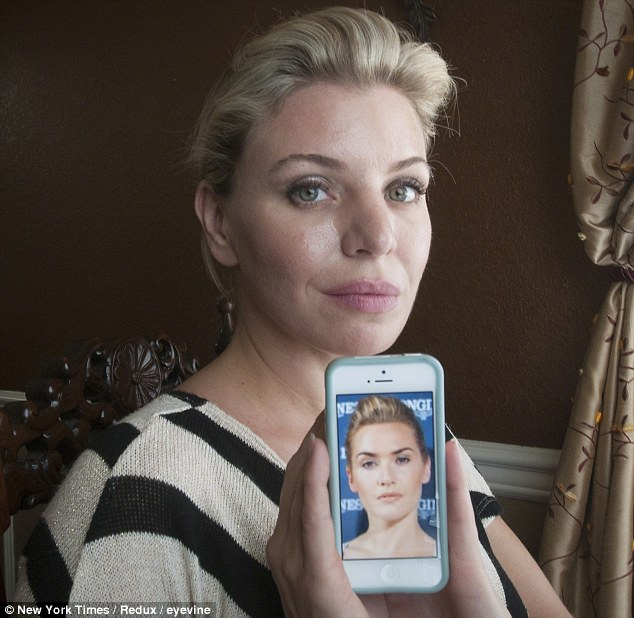 celebrity plastic surgery lookalike