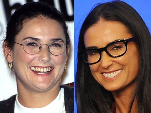 Demi moore cosmetic dental surgery before and after