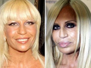 worst celebrity lip job, Donnatella Versace bad lip job