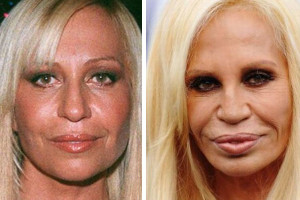 donatella versace nose job gone wrong
