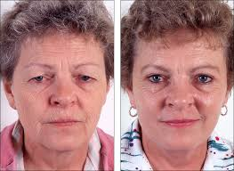 popular plastic surgery procedures for women eye lid surgery