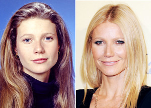 Top 10 Best Celebrity Plastic Surgery