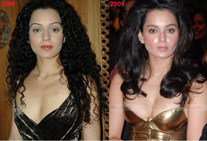 Top 10 Bollywood Celebrity Plastic Surgery Before And