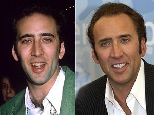 Nicholas cage cosmetic dental surgery before and after