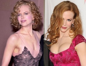 Nicole Kidman best boob job, Nicole Kidman best breast implants