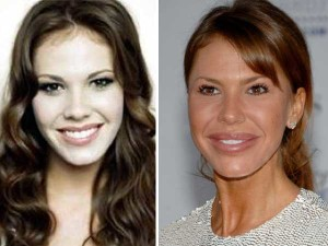 worst celebrity lip job, Nikki Cox bad lip job
