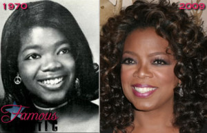 Oprah winfrey cosmetic dental surgery before and after