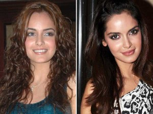worst celebrity lip job,Shazahn Padamsee bad lip job