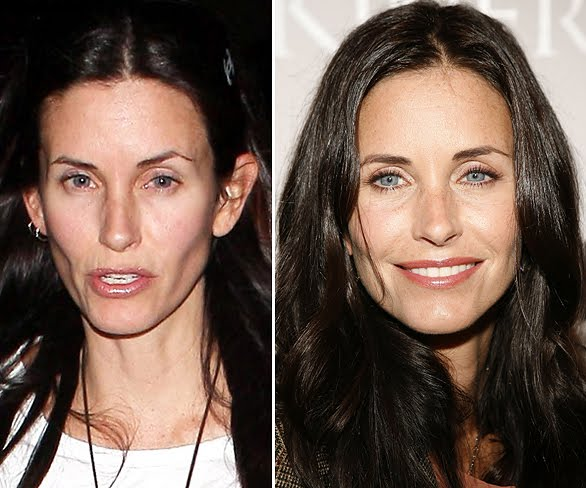 courteney cox plastic surgery before and after photo, courteney cox botox