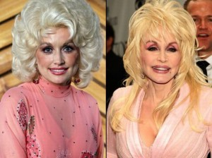 Dolly Patron Plastic Surgery Before and After
