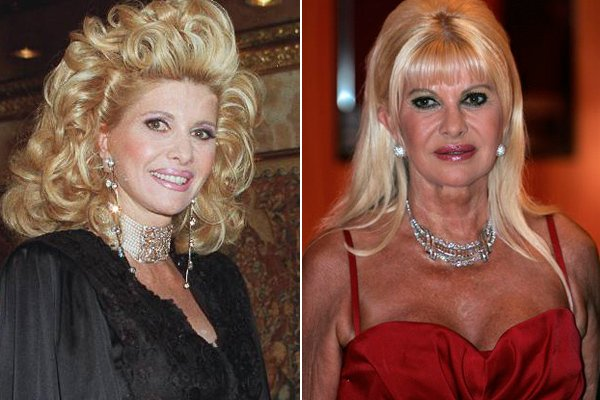 Ivana trump plastic surgery before and after photo, Ivana trump nose job and lip fillers