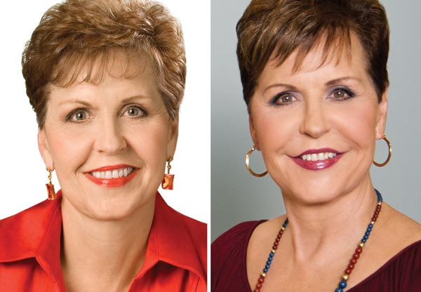 Joyce Meyer plastic surgery before and after photo