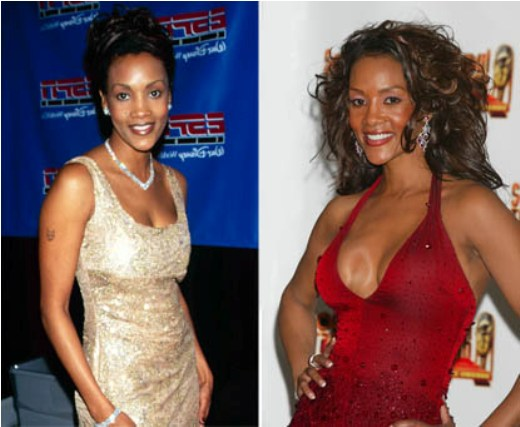 Vivica Fox plastic surgery before and after photo